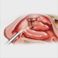 Videonasofibroscopia